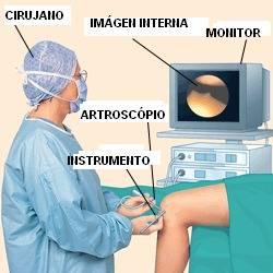 Artroscopia en Margarita-Traumatología-Ozonoterapia: Dr. Martín Garleano
